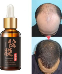 HaiBaiZhi Natural Extract Rich Essence Oil For Hair Loss